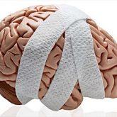 Los Mejores Abogados en Español de Lesiones Cerebrales Para Mayor Compensación en Montebello California